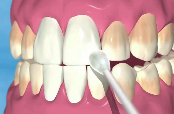 AdFind Deals on Power Swabs Teeth Whitening in Oral Care on Amazon.