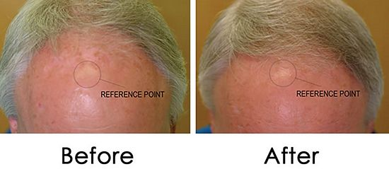 hairmax-laserband-before-after