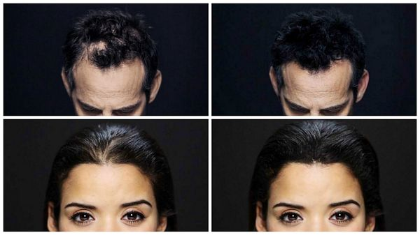 Keratin-Hair-Thickening-Fibers