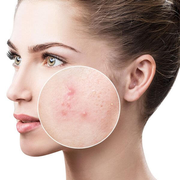 get-rid-of-acne
